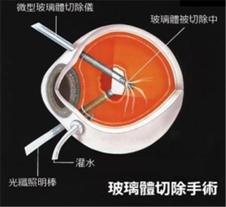 玻璃体视网膜